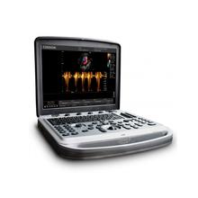 Портативный ультразвуковой кардиологический аппарат экспертного класса SonoBook 8 Chison Medical Imaging Co (КНР)