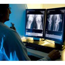 Дополнительная рабочая станция врача рентгенолога SE AGFA (Бельгия)