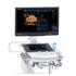 Система ультразвуковая диагностическая APLIO a550 Canon Medical Systems (Япония)